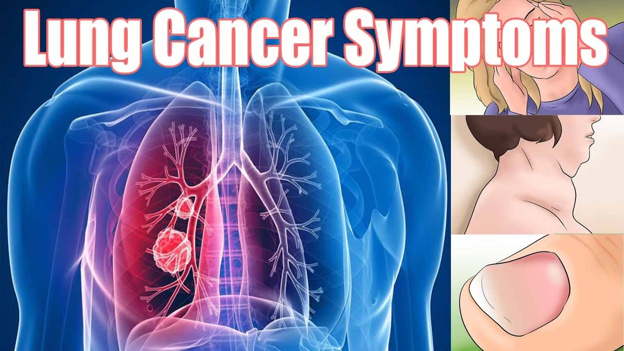 9 Symptoms Of Lung Cancer That Need To Be Known. Buffet Banners. Ford Ranger Stickers. Kids Beach Murals. Circle Address Labels. Template Signs Of Stroke. Silver Tree Stickers. Prep Lettering. Pelancongan Murals