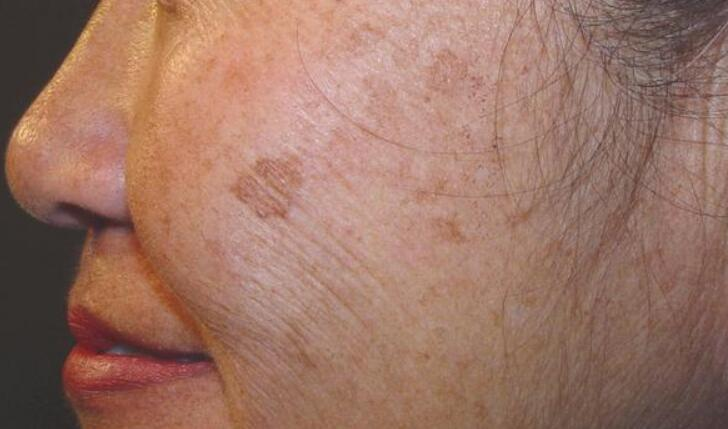 How to get rid of age spots on face uk